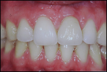 crown on implant on upper left central incisor